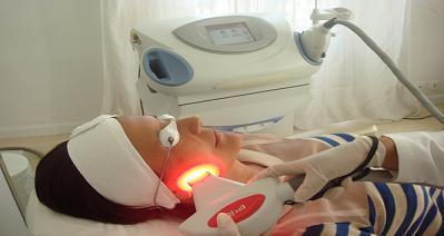 La photoréjuvénation, lumière pulsée qui embellit les femmes