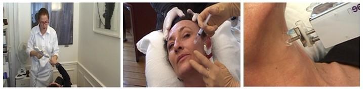 Revitaliser son visage par la mésothérapie