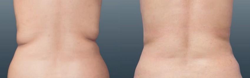 Dans les semaines qui suivent, le corps transforme la graisse et les bourrelets disparaissent. (Dos avant/après) - Crédit photos DR-