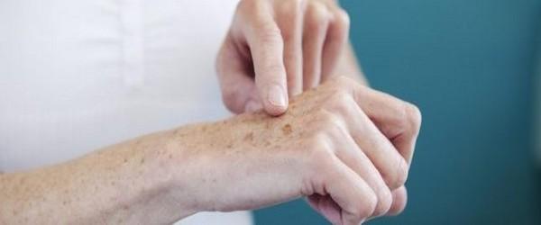 pallier le vieillissement des mains par de simples soins pour commencer, et plus tard, par des traitements rapides, indolores et surtout très efficaces.  @ DR