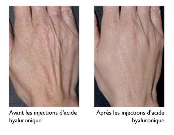 Soins et beauté des mains..@ DR